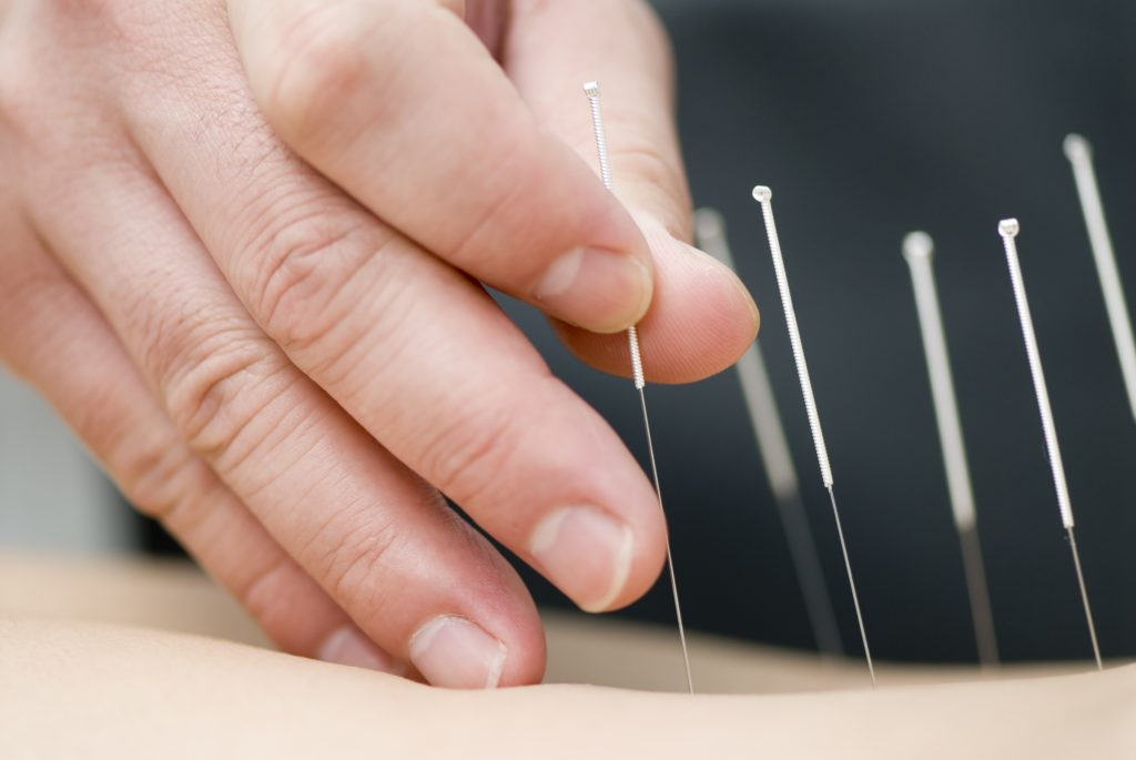 Surprising Benefits of Acupuncture Brielle NJ